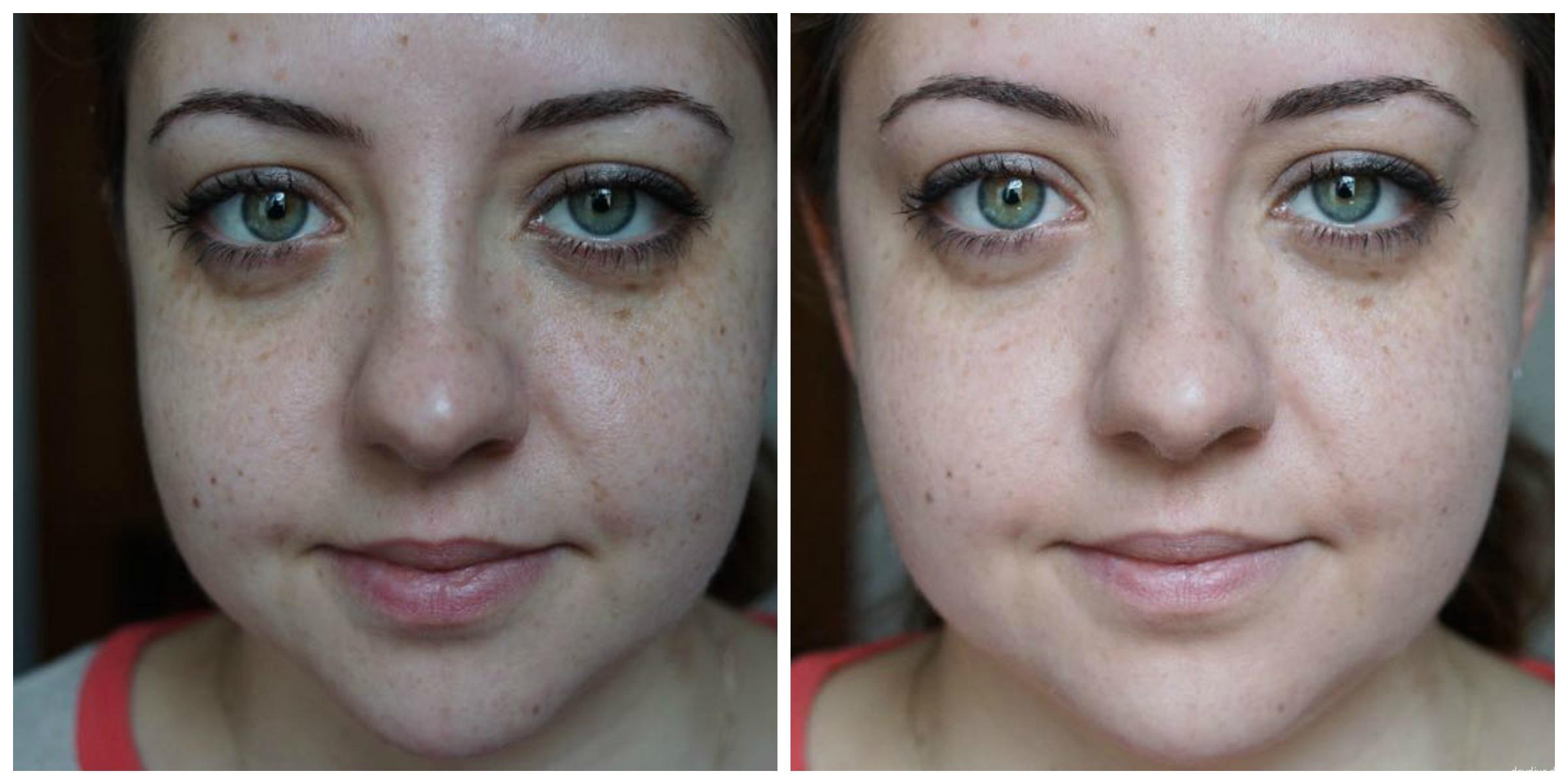 Vorher / Naher Vergleich BB Cream mittel bis dunkel Nuance
