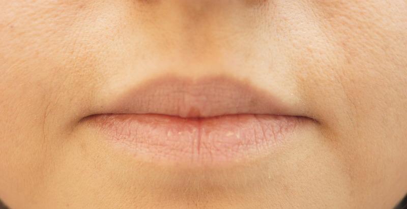 Lippen ungeschminkt